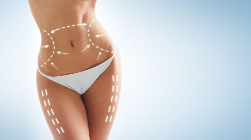 5 lucruri despre lipoaspiratie