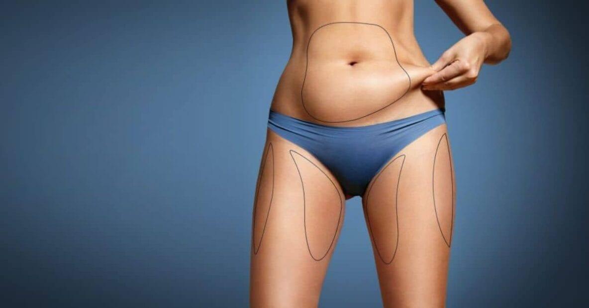 beneficiile operatiei de liposuctie