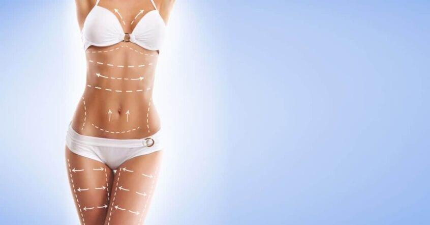 liposuctia–sculptura unui corp perfect