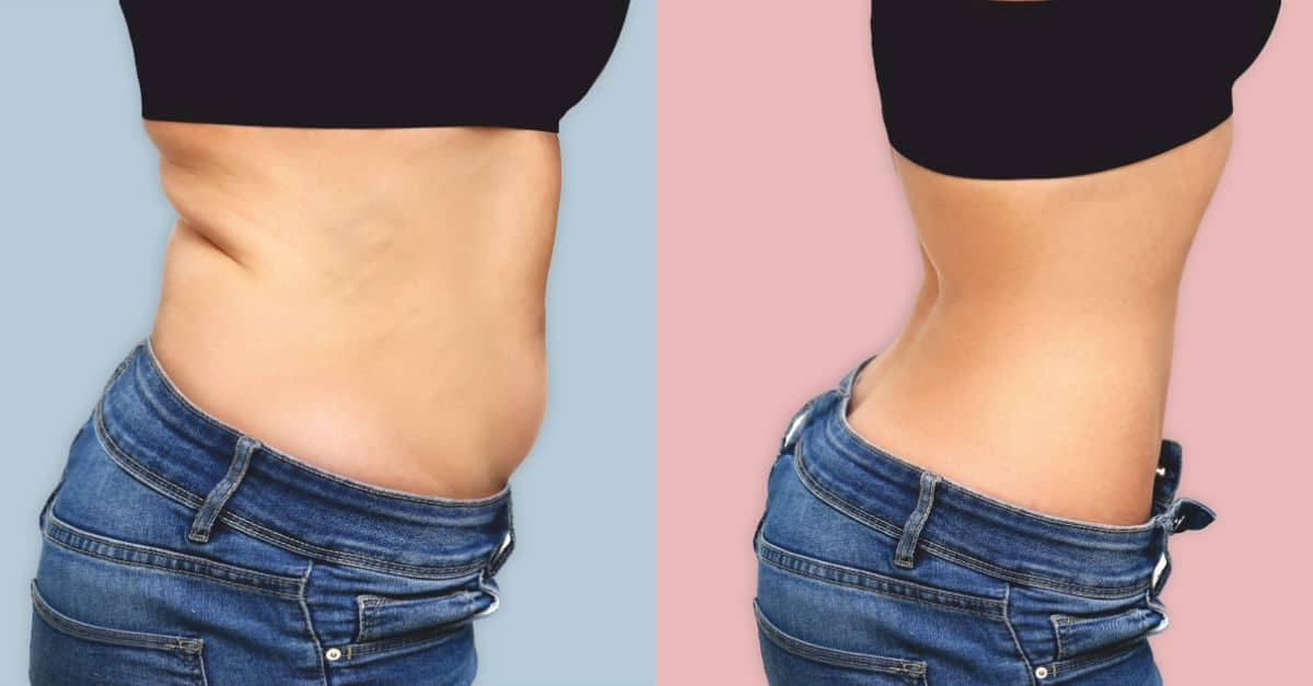 cata pierdere in greutate abdominoplastie tbc pierde in greutate