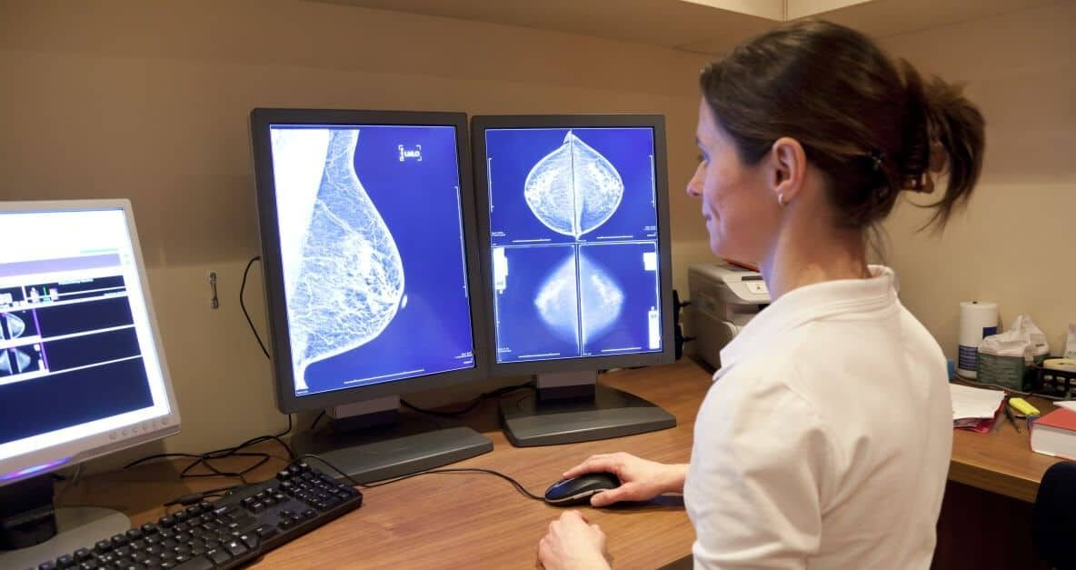 mamografii reductie mamara