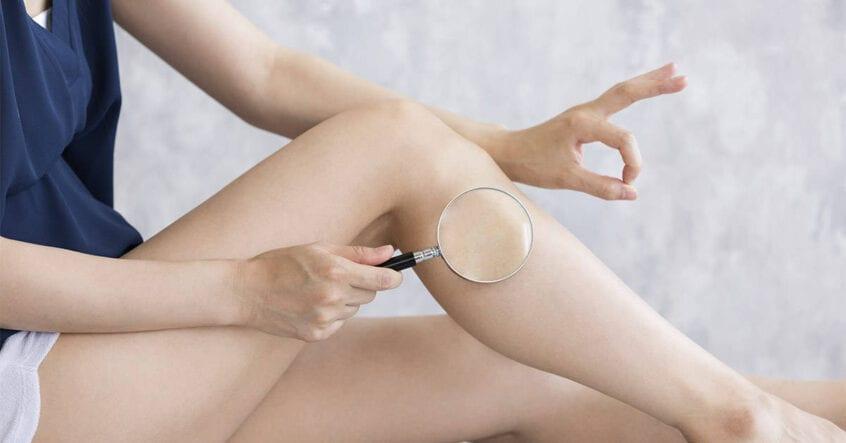 implanturi de gamba